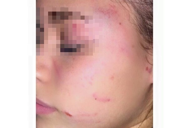 Vomero, selvaggia aggressione fuori scuola: 13enne ferita da baby bulle per gelosia