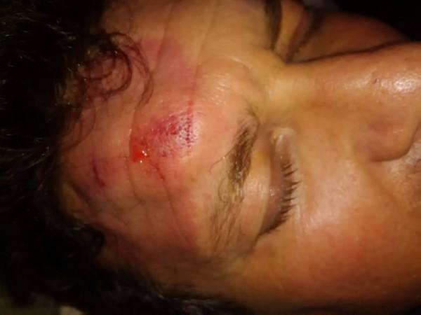 Chiaia: ferito consigliere municipalità Boccalatte, denuncia aggressione con foto su Fb
