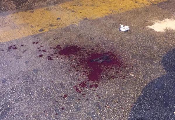 Fuorigrotta, autobus parte tardi: passeggero manda autista all'ospedale a bottigliate in faccia