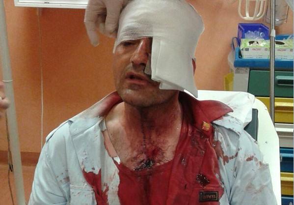 Autista Anm assalito a bottigliate, l'aggressore patteggia: condannato a 8 mesi