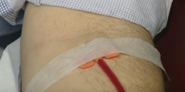 Donatori sangue, in Campania boom di positivi ai test sulle infezioni