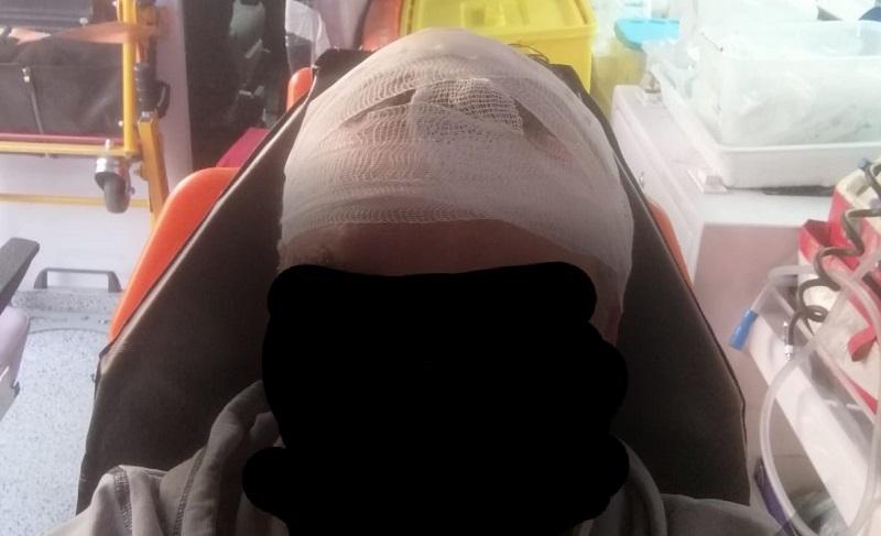Napoli, follia nel metrò: guardia giurata presa a martellate in testa